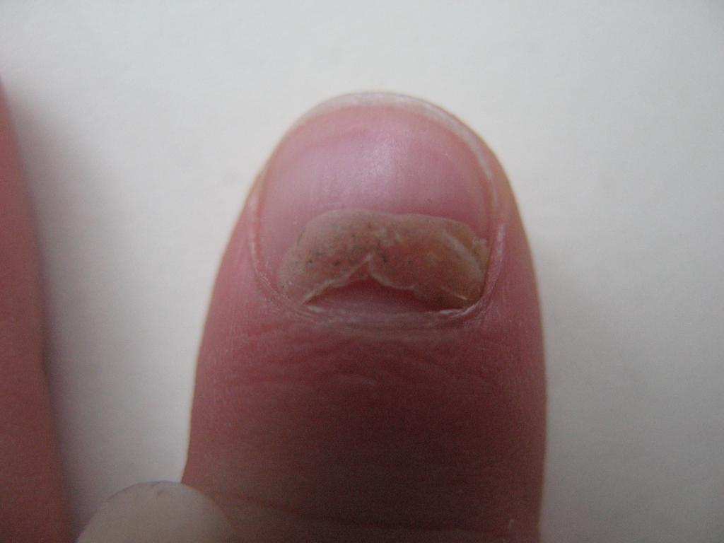 Почему у ребенка слазят ногти