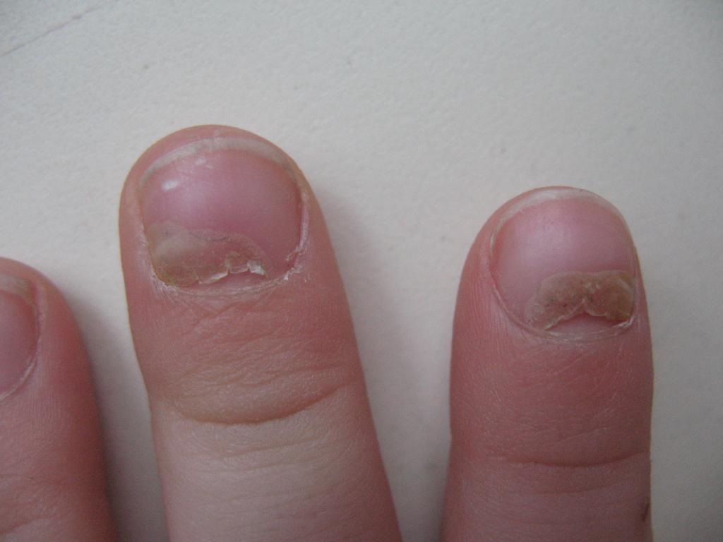 У ребенка ногти облазиют